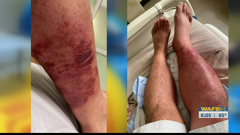 Arturo Fernandez contracted a flesh-eating bacteria infection after he went tubing on the Amite...